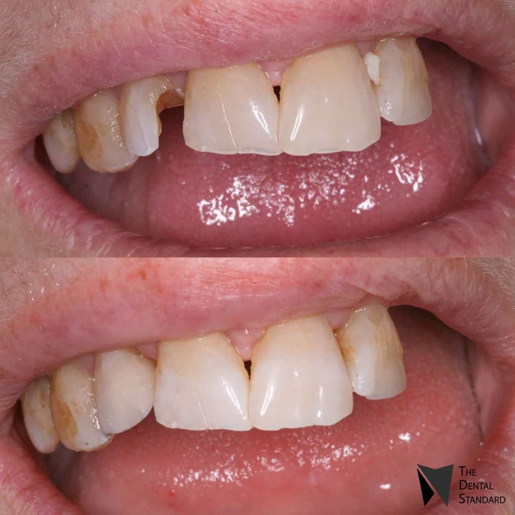 tooth bonding before and after