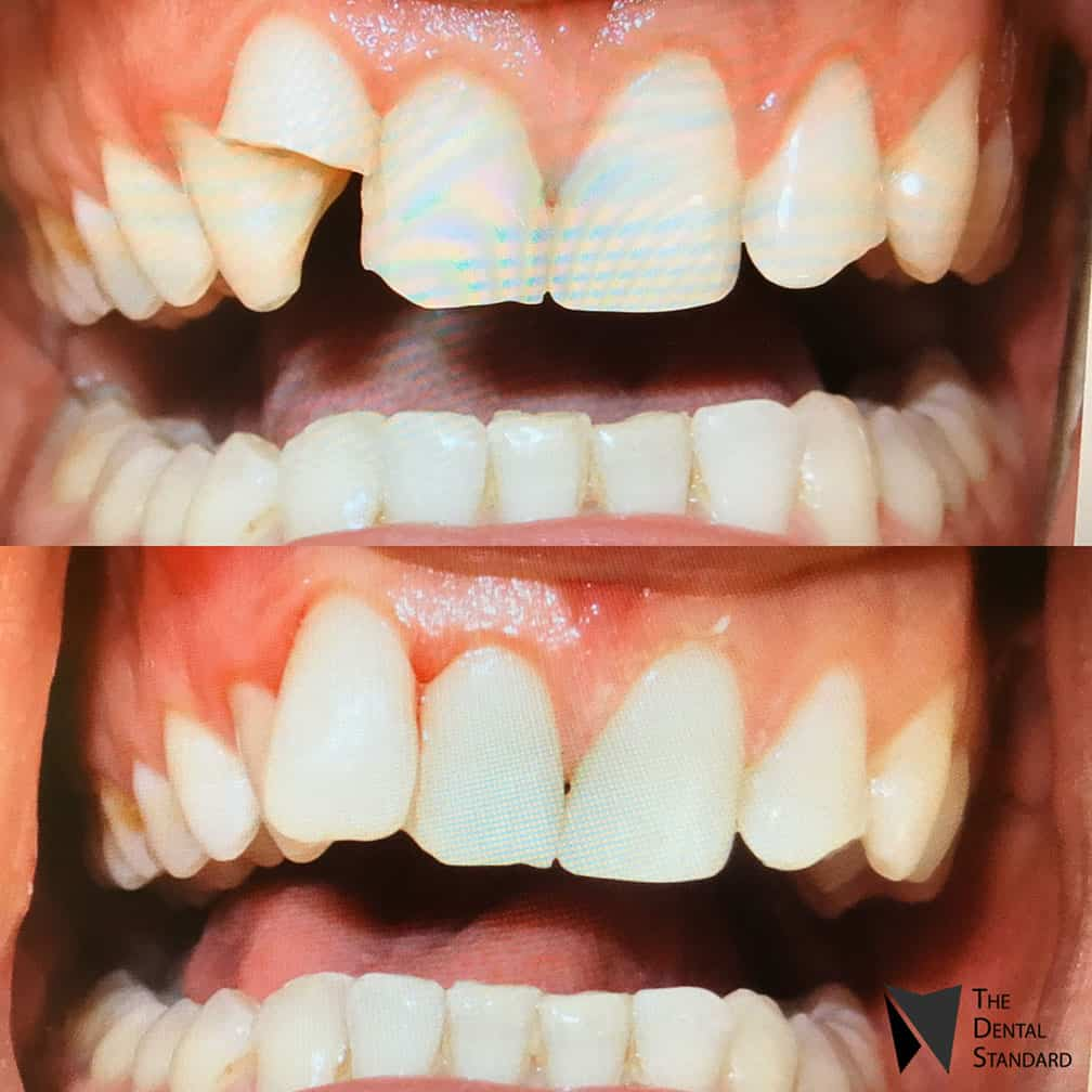 teeth composite bonding before and after