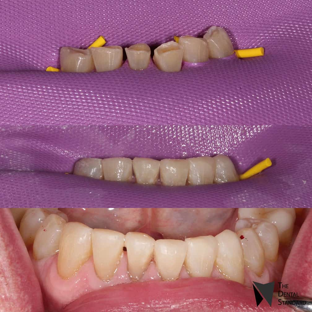 teeth composite rehab before and after