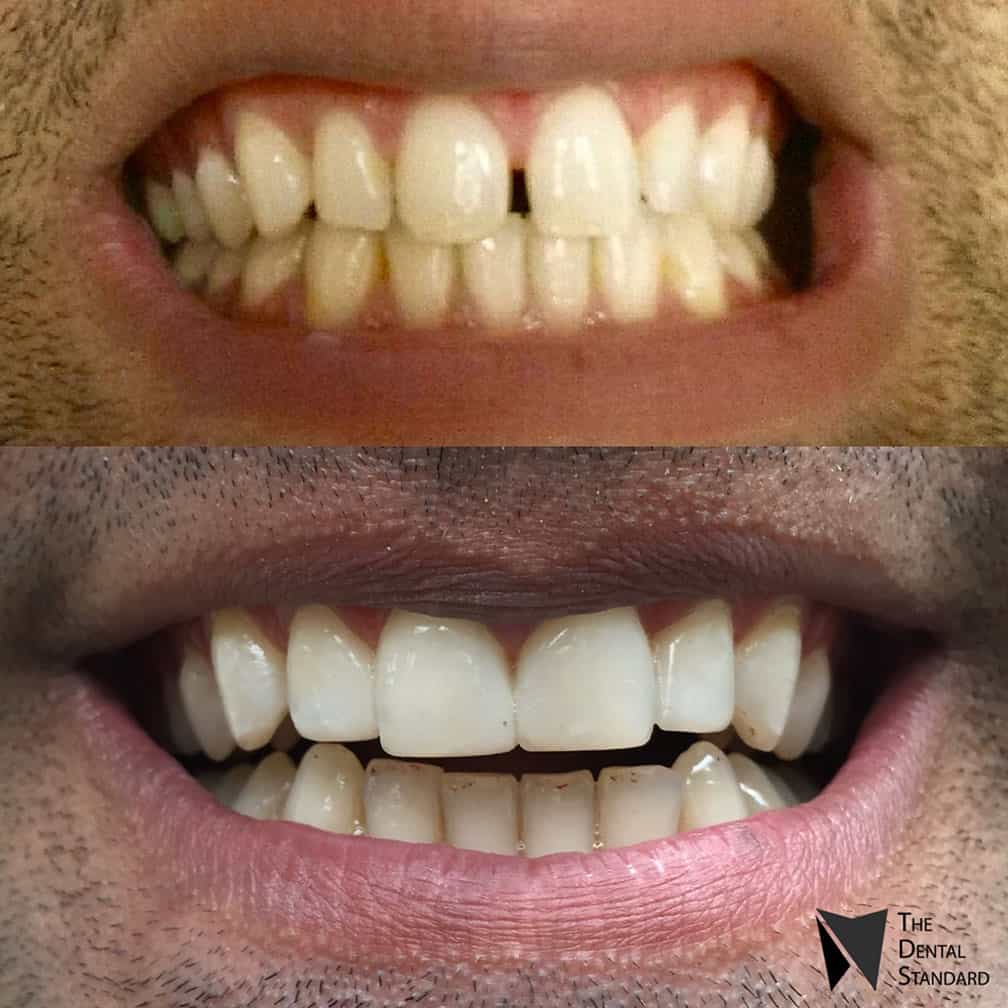 teeth composite veneers before and after