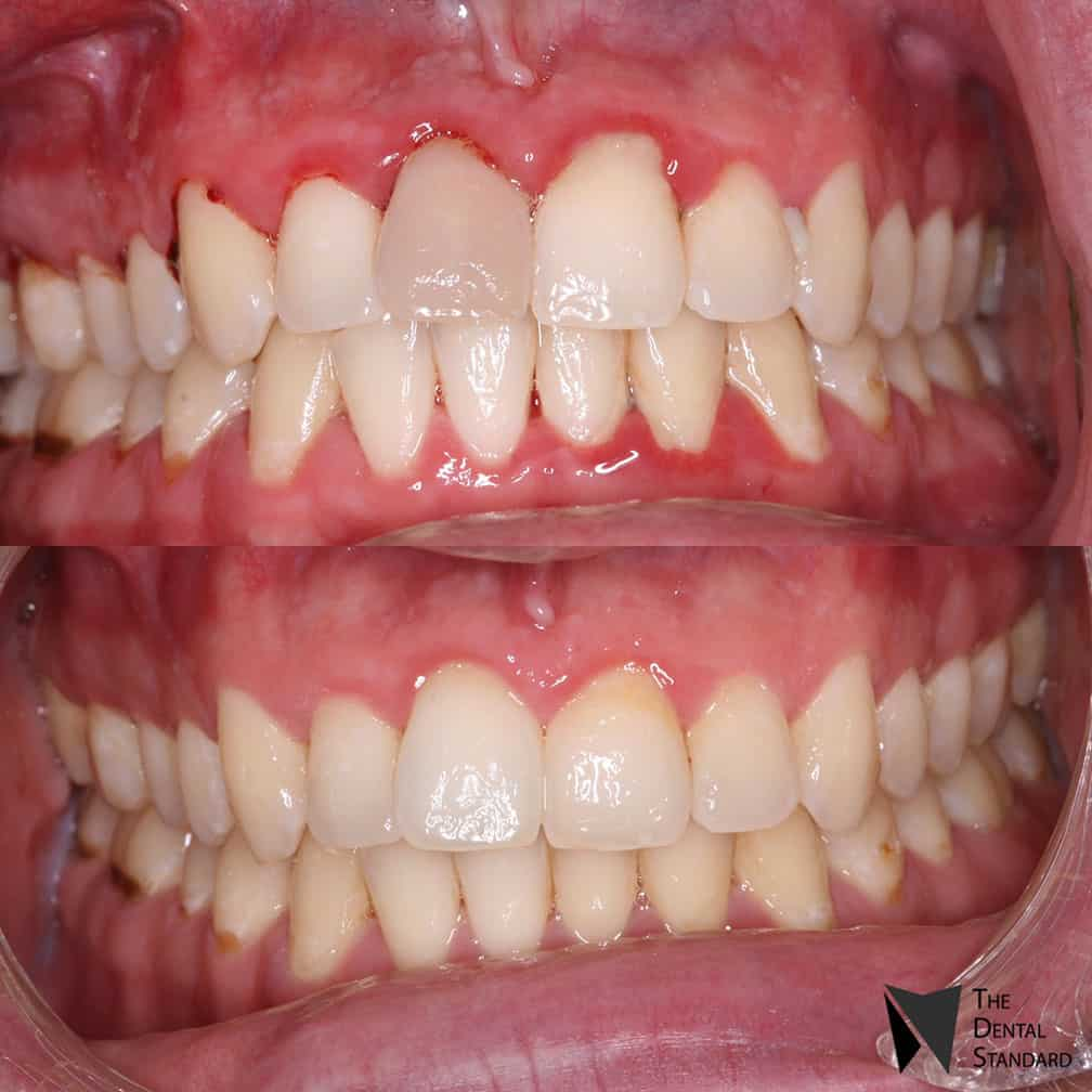 teeth bleaching before and after