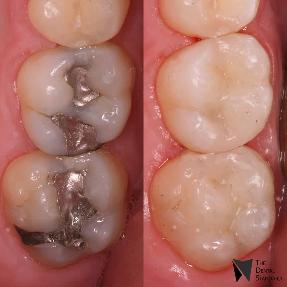 teeth molar filling before and after